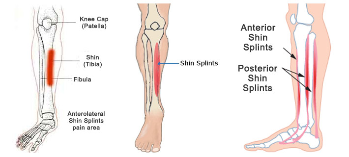 shin splints, Cephalic Vein